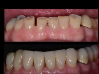 usure-dentali-caso-2.004
