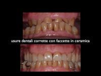 usure-dentali-caso-7.007